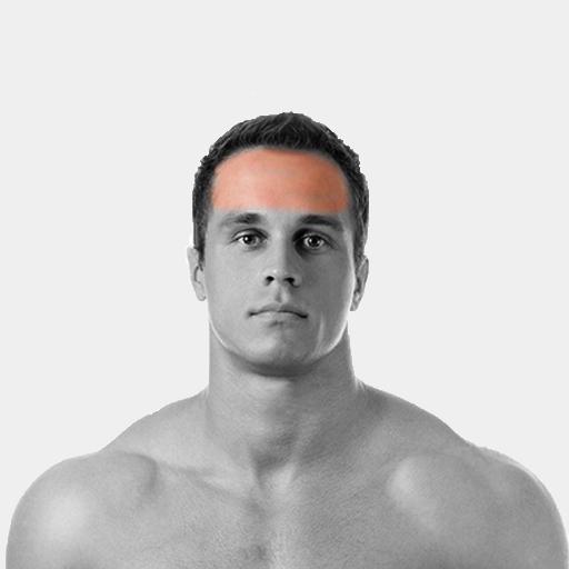 Forehead Laser Hair Removal For Men