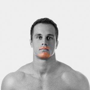 Upper Lip, Chin Laser Hair Removal For Men