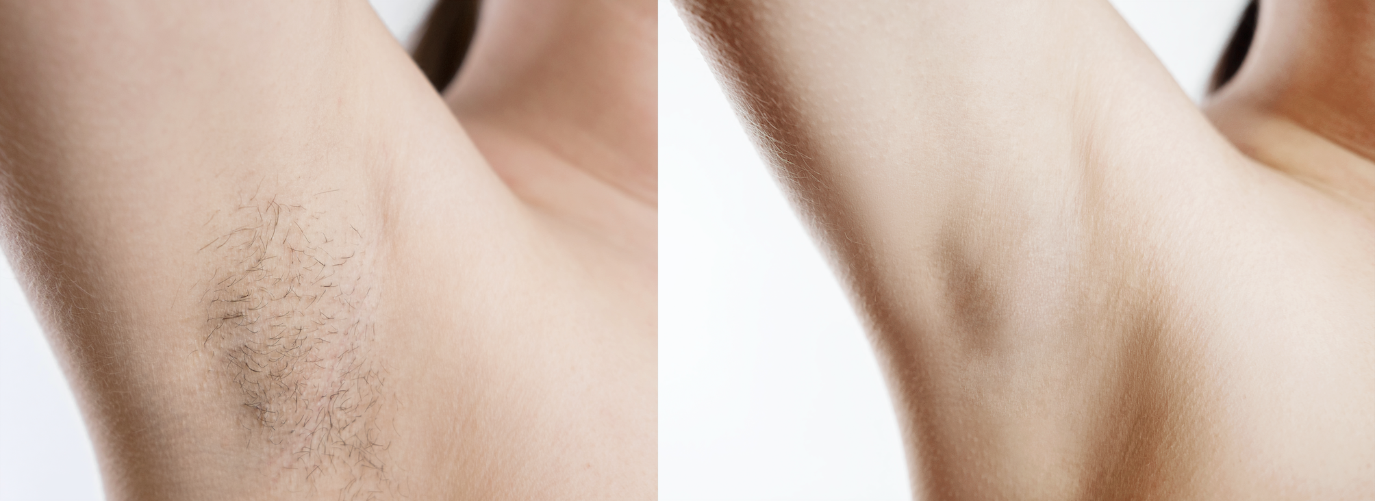 Underarm Laser Hair Removal Before After Pictures